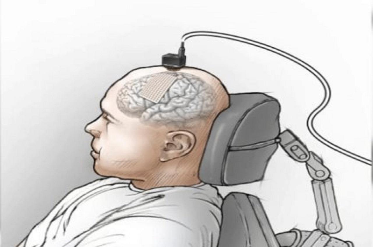 neuroprosthesis of speech paralysis
